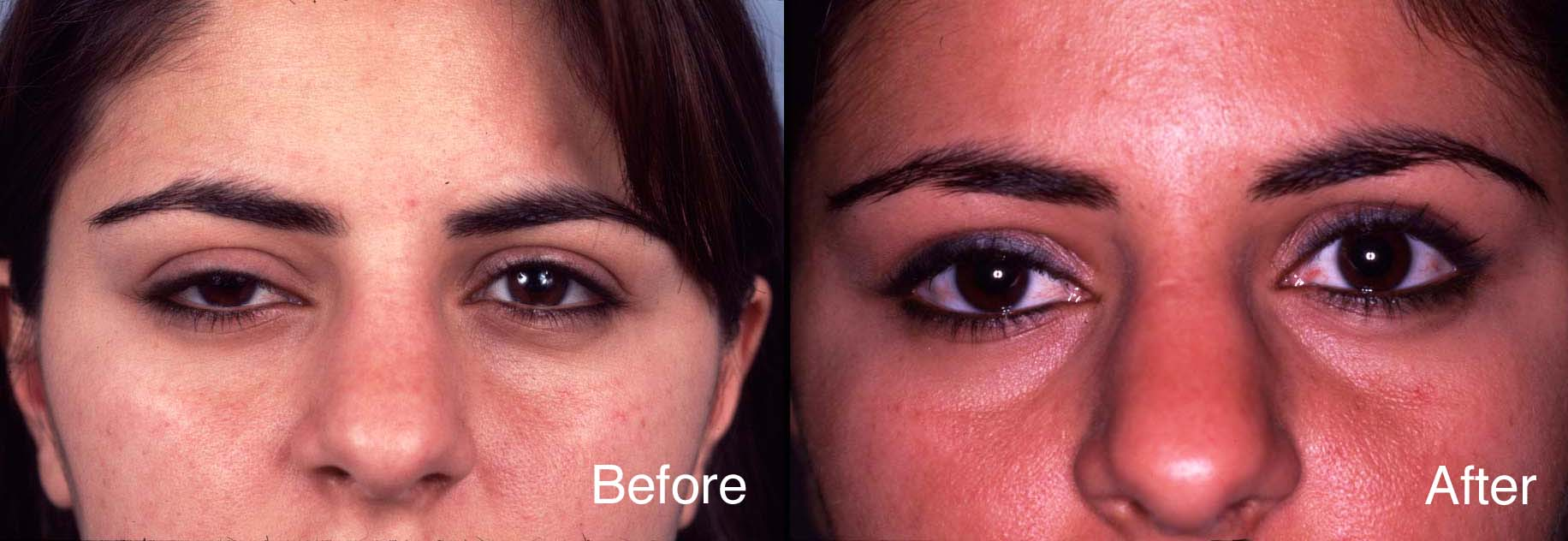 Eyelid Case Study | Beverly Hills Blepharoplasty Cases